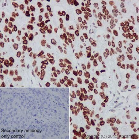 Immunohistochemistry (Formalin/PFA-fixed paraffin-embedded sections) - Anti-HMGA2 antibody [EPR18114] (ab207301)