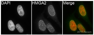 Immunocytochemistry/ Immunofluorescence - Anti-HMGA2 antibody [EPR18114] (ab207301)