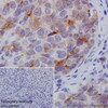 Immunohistochemistry (Formalin/PFA-fixed paraffin-embedded sections) - Anti-SPINK1/P12 antibody [EPR17585-116] (ab207302)