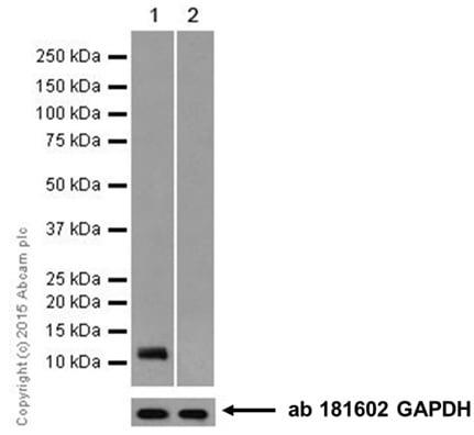 Western blot - Anti-SPINK1/P12 antibody [EPR17585-116] (ab207302)