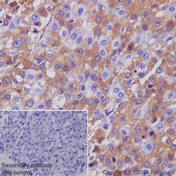 Immunohistochemistry (Formalin/PFA-fixed paraffin-embedded sections) - Anti-alpha 1 Antitrypsin antibody [EPR17087-50] (ab207303)