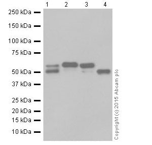 Western blot - Anti-alpha 1 Antitrypsin antibody [EPR17087-50] (ab207303)