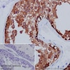 Immunohistochemistry (Formalin/PFA-fixed paraffin-embedded sections) - Anti-MAGEC1 antibody [EPR18067] (ab207304)