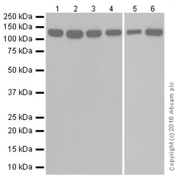 Western blot - Anti-Vinculin antibody [EPR19579] (ab207440)