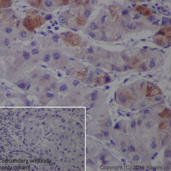 Immunohistochemistry (Formalin/PFA-fixed paraffin-embedded sections) - Anti-SAA1 + SAA2 antibody [EPR19550] (ab207445)