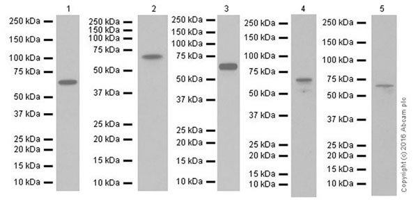 Western blot - Anti-Chk2 antibody [EPR19482] (ab207446)