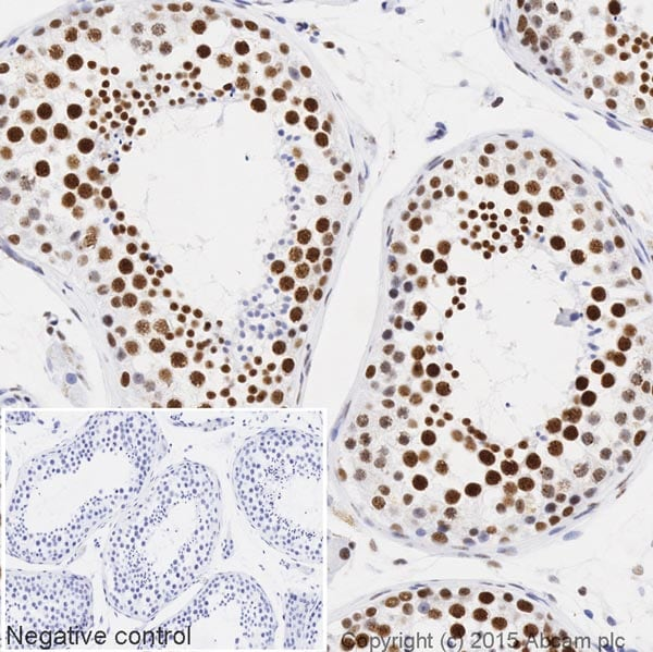 Immunohistochemistry (Formalin/PFA-fixed paraffin-embedded sections) - Anti-PABPN1 antibody [EP3000Y] (HRP) (ab207515)