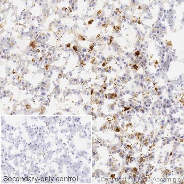 Immunohistochemistry (Frozen sections) - Anti-Cathepsin D antibody [EPR3057Y] - BSA and Azide free (ab207549)