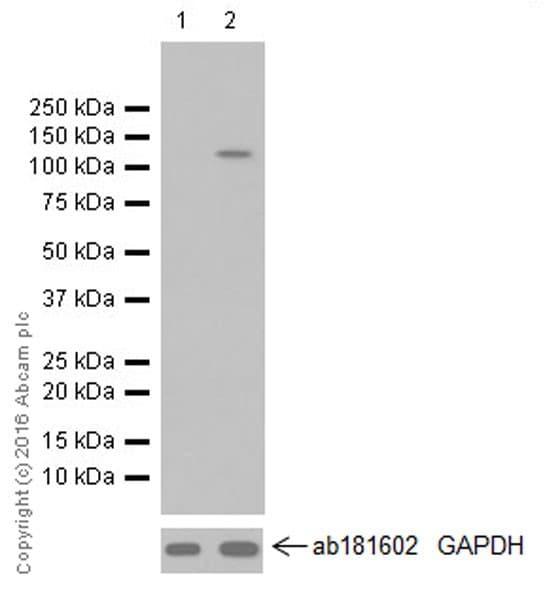 Western blot - Anti-HIF-2-alpha antibody [EPR19656] (ab207607)