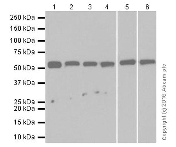 Western blot - Anti-Beclin 1 antibody [EPR19662] (ab207612)