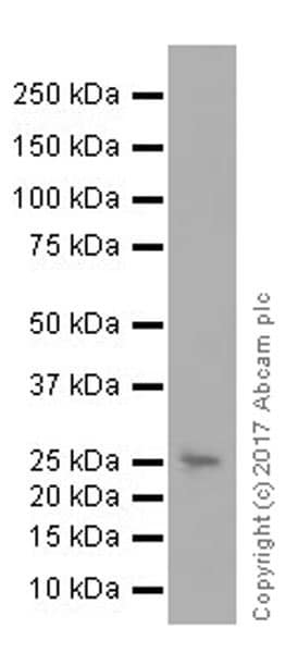 Western blot - Anti-C Reactive Protein antibody [EPR20063] (ab207756)