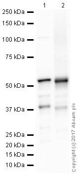 Western blot - Anti-Adipose Triglyceride Lipase antibody [EPR19650] (ab207799)