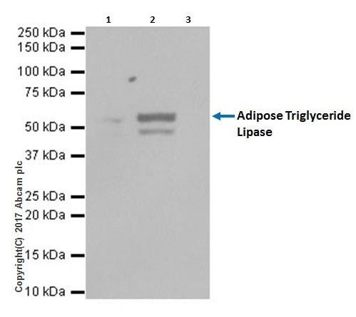 Immunoprecipitation - Anti-Adipose Triglyceride Lipase antibody [EPR19650] (ab207799)