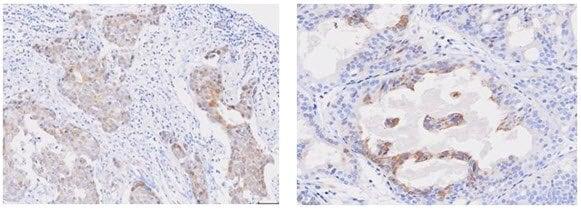 Immunohistochemistry (Formalin/PFA-fixed paraffin-embedded sections) - Anti-STEAP1 antibody [J2D2] - N-terminal (ab207914)