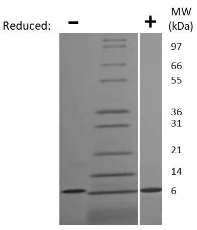 SDS-PAGE - Recombinant human CXCL5 protein (ab207960)