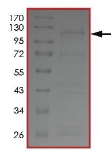 SDS-PAGE - Recombinant human PIP5K3/PIKFYVE protein (ab207977)