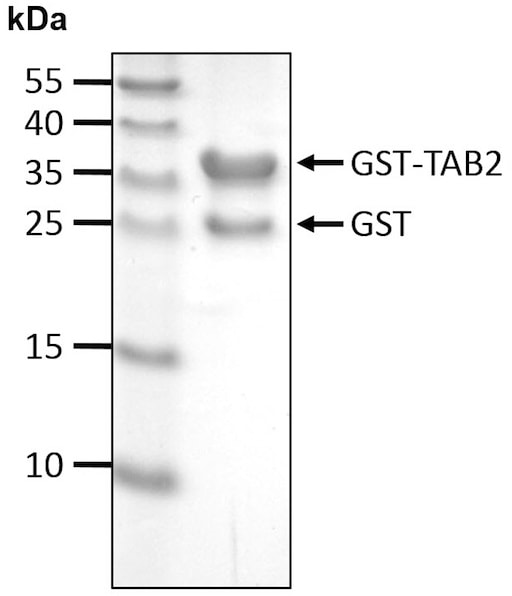 SDS-PAGE - Recombinant Human TAB2 protein (ab207983)