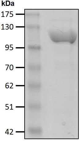 SDS-PAGE - Recombinant Human E1 Ubiquitin Activating Enzyme 1/UBA1 protein (ab207988)