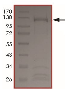 SDS-PAGE - Recombinant human ErbB 2 (mutated R896 C) protein (ab207994)