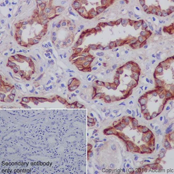 Immunohistochemistry (Formalin/PFA-fixed paraffin-embedded sections) - Anti-Integrin alpha V antibody [EPR19669] (ab208012)