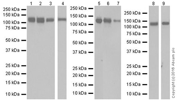Western blot - Anti-Integrin alpha V antibody [EPR19669] (ab208012)