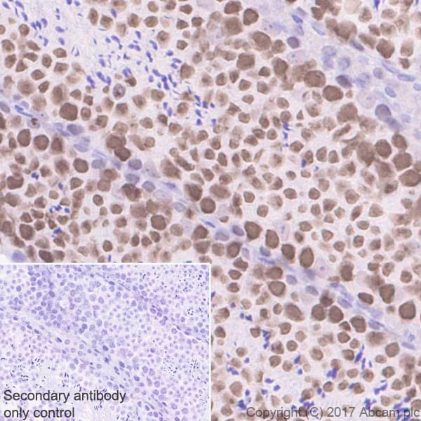 Immunohistochemistry (Formalin/PFA-fixed paraffin-embedded sections) - Anti-AF10 antibody [EPR20810] (ab208016)