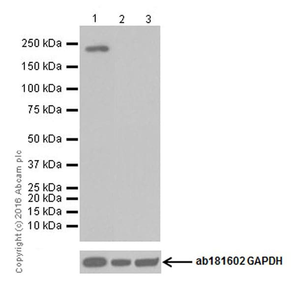 Western blot - Anti-CD45 antibody [EPR20033] (ab208022)