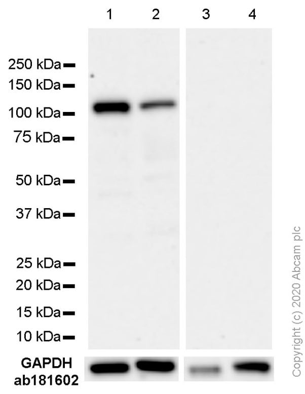 Western blot - Anti-Androgen Receptor antibody [EP670Y] - BSA and Azide free (ab208088)