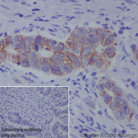 Immunohistochemistry (Formalin/PFA-fixed paraffin-embedded sections) - Anti-L1CAM antibody [EPR18750] (ab208155)