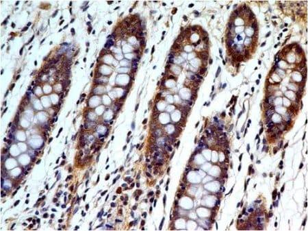 Immunohistochemistry (Formalin/PFA-fixed paraffin-embedded sections) - Anti-Caspase-3 antibody [ABM1C12] (ab208161)