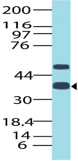 Western blot - Anti-TTF1 antibody (ab208176)