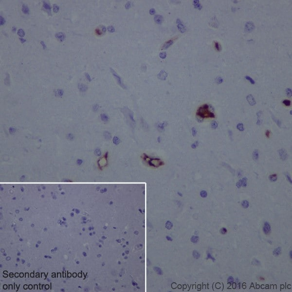 Immunohistochemistry (Formalin/PFA-fixed paraffin-embedded sections) - Anti-Lipoprotein a antibody [EPR19731] (ab208184)