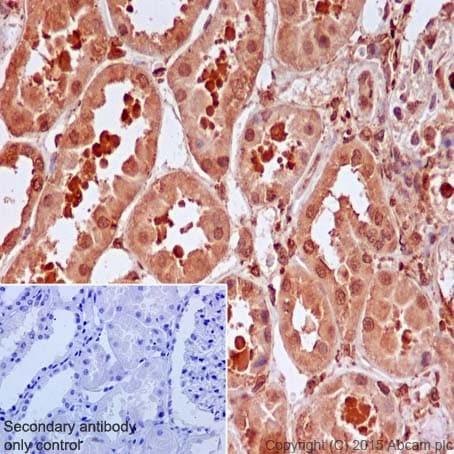 Immunohistochemistry (Formalin/PFA-fixed paraffin-embedded sections) - Anti-IRS2 antibody [EPR904(2)] - BSA and Azide free (ab208195)