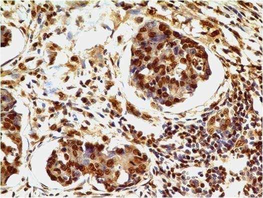 Immunohistochemistry (Formalin/PFA-fixed paraffin-embedded sections) - Anti-HMGB1 antibody [ABM24D3] (ab208282)