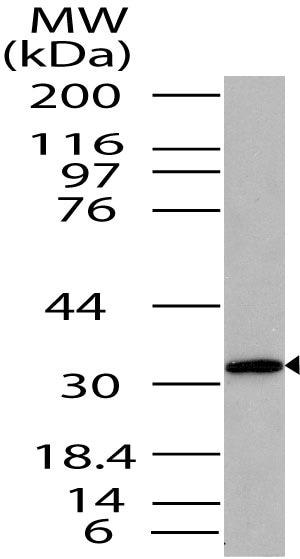 Western blot - Anti-ST2 antibody (ab208283)