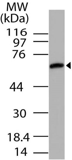 Western blot - Anti-UNC93B1 antibody (ab208288)