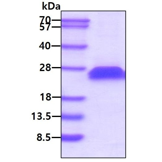 SDS-PAGE - Recombinant Mouse CD40 protein (His tag) (ab208459)