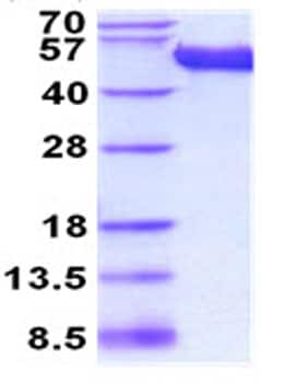 SDS-PAGE - Recombinant Mouse CD5L/CT-2 protein (His tag) (ab208467)
