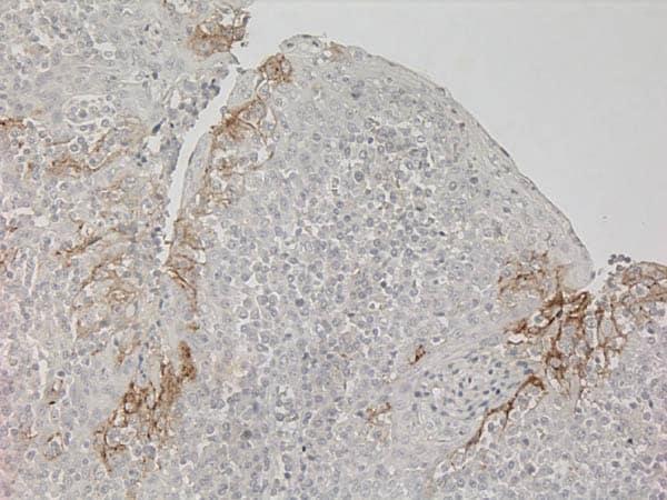 免疫组织化学法(福尔马林/PFA固定石蜡包埋切片)在人扁桃体上的应用