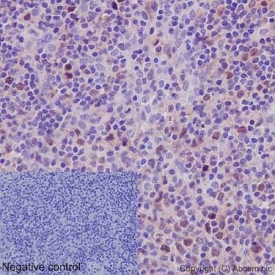 Immunohistochemistry (Formalin/PFA-fixed paraffin-embedded sections) - Anti-Cdk2 antibody [E304] - BSA and Azide free (ab208697)