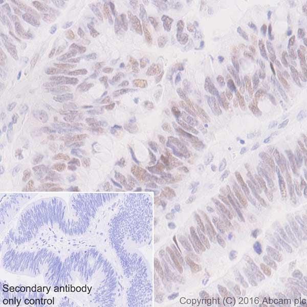 Immunohistochemistry (Formalin/PFA-fixed paraffin-embedded sections) - Anti-MSH6 antibody [EPR20316] (ab208940)
