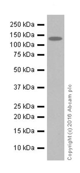 Western blot - Anti-MSH6 antibody [EPR20316] (ab208940)