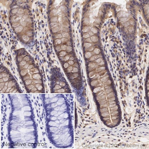 Immunohistochemistry (Formalin/PFA-fixed paraffin-embedded sections) - Anti-RAB8A antibody [EPR14873] - C-terminal (HRP) (ab209046)