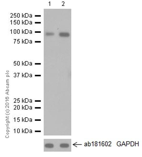 Western blot - Anti-TLR2 antibody [EPR20303] (ab209217)