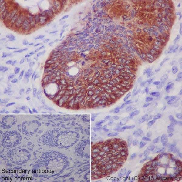 Immunohistochemistry (Formalin/PFA-fixed paraffin-embedded sections) - Anti-Anterior Gradient 2 antibody [EPR20164-278] (ab209224)