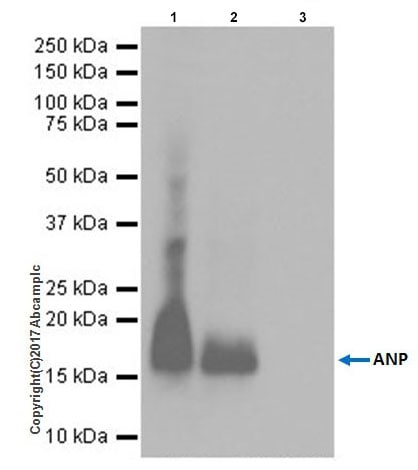 Immunoprecipitation - Anti-Natriuretic peptides A antibody [EPR20247] (ab209232)