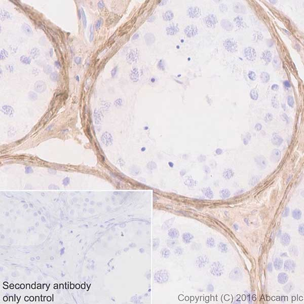 Immunohistochemistry (Formalin/PFA-fixed paraffin-embedded sections) - Anti-Biglycan antibody [EPR20235] (ab209234)