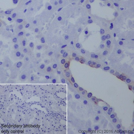 Immunohistochemistry (Formalin/PFA-fixed paraffin-embedded sections) - Anti-B7H4 antibody [EPR20236] (ab209242)