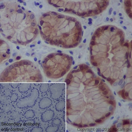 Immunohistochemistry (Formalin/PFA-fixed paraffin-embedded sections) - Anti-Galectin 3 antibody [EPR19244] (ab209344)