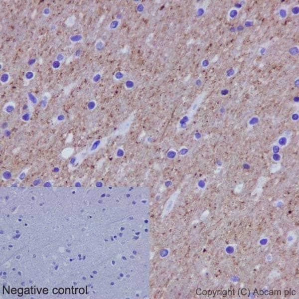Immunohistochemistry (Formalin/PFA-fixed paraffin-embedded sections) - Anti-alpha Tubulin (acetyl K40) antibody [EPR16772] - BSA and Azide free (ab209348)